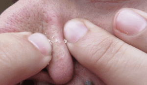 Squeezing blackheads at home can cause infections